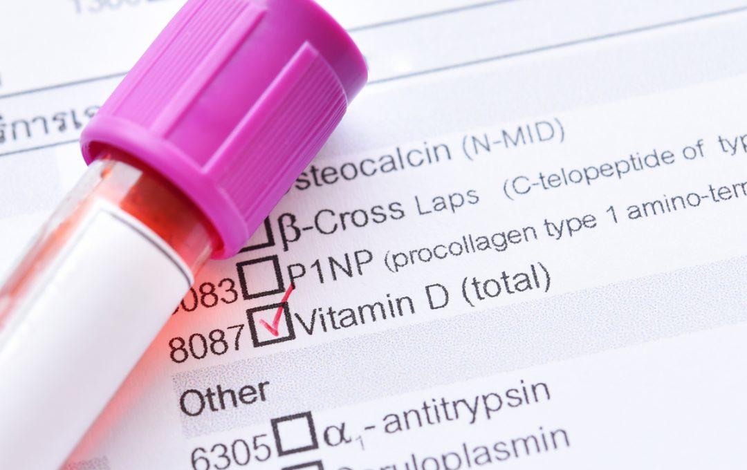 I test sono trattamenti per la carenza di vitamina D